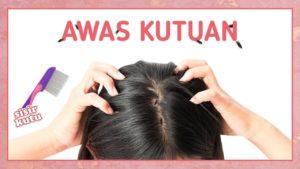 Ini 5 Penyebab Kutu Rambut dan Cara Mengatasinya